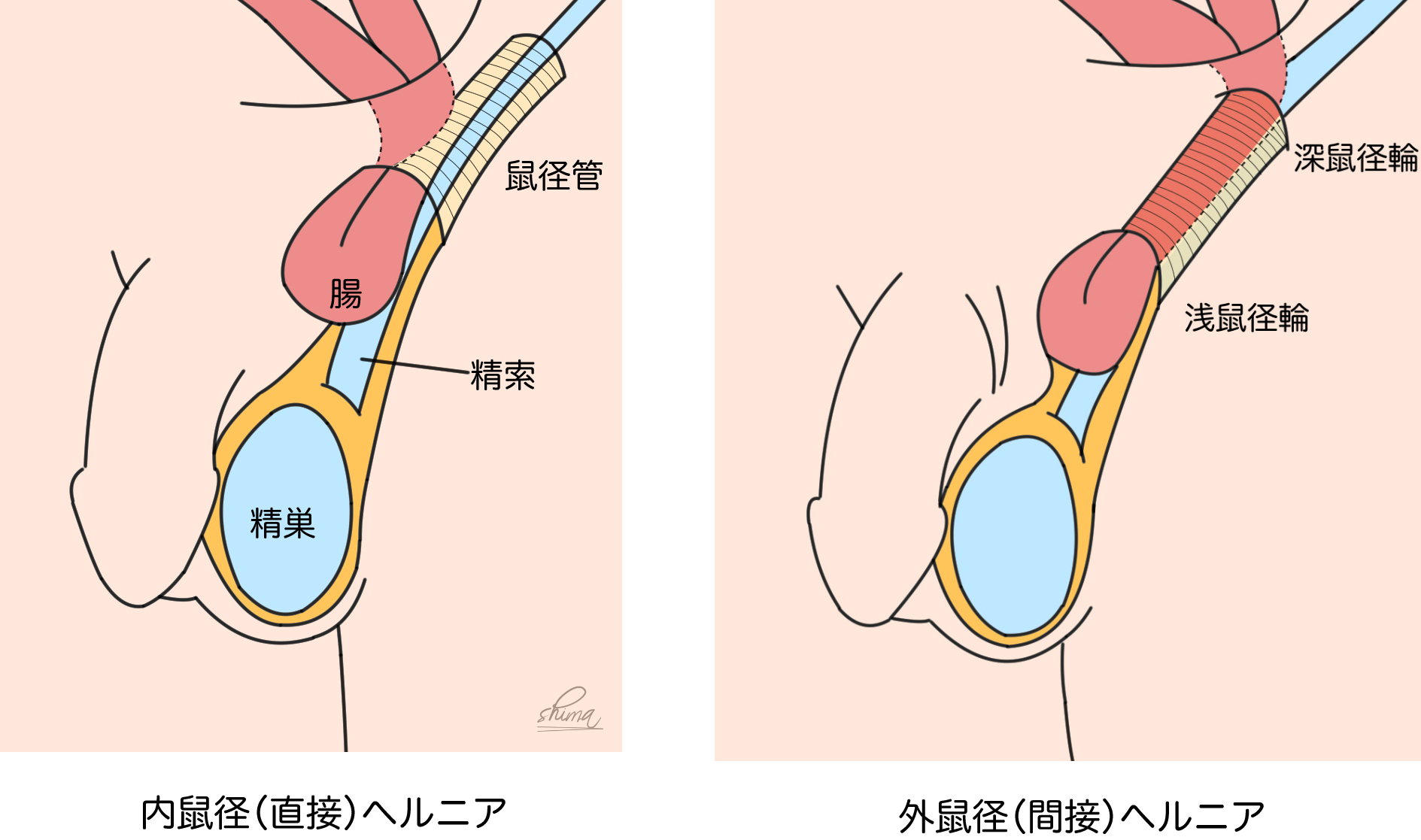 鼠径 ヘルニア 原因 鼠径ヘルニアの原因と症状|Gi外科クリニック